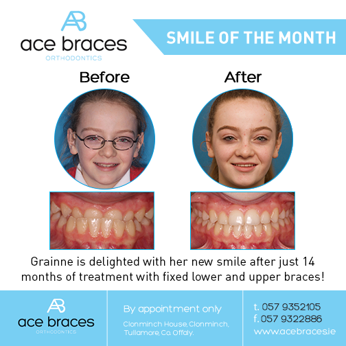 braces in ireland best orthodontist